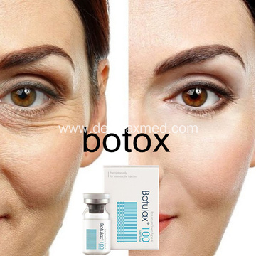 Wrinkle Removal Injectable Botolisemtoxin Toxin Type a